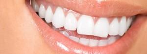 Birmingham teeth Whitening