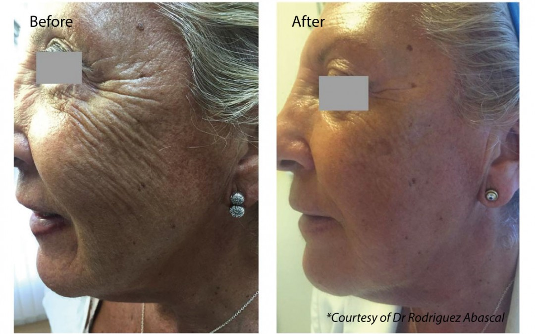 Skin tightening with profhilo