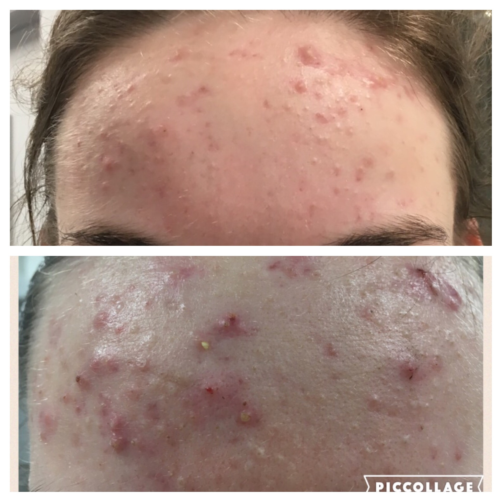 Acne plasma shower