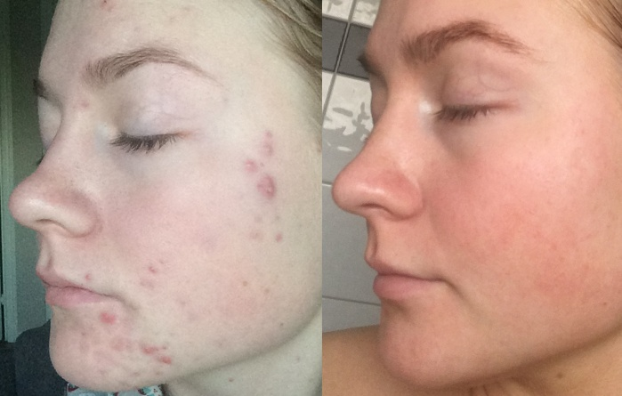 acne plasma shower