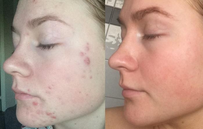 Acne treatment using Plasma Shower