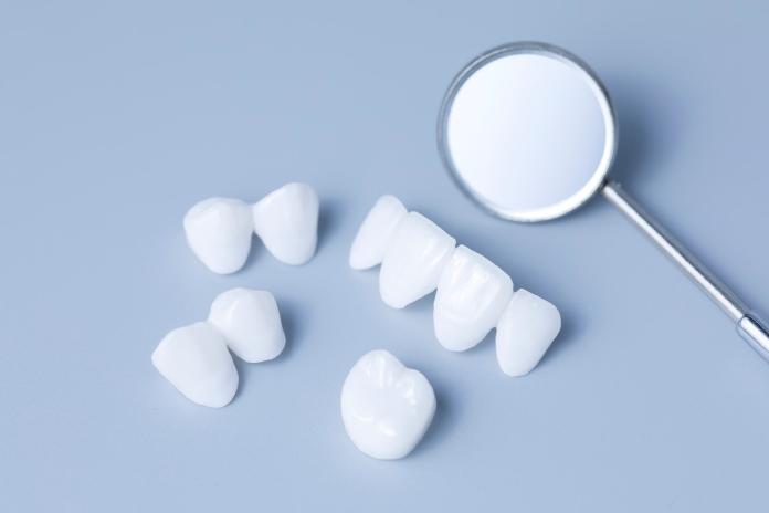 Dental veners